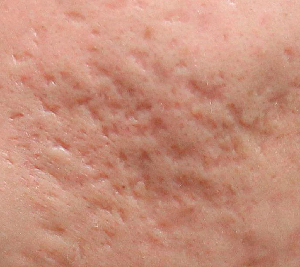 Centro Di Laserterapia Dermatologia Roma Trattamenti