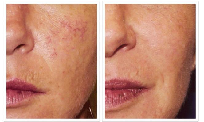 risultati ottenuti con laser su capillari del viso
